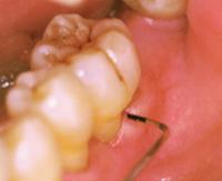 歯と歯茎の検査